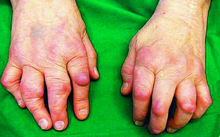 artritisz 3 fokú térdkezelés