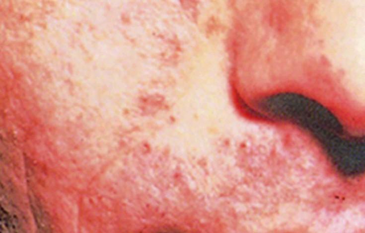 Barzdos grybelis